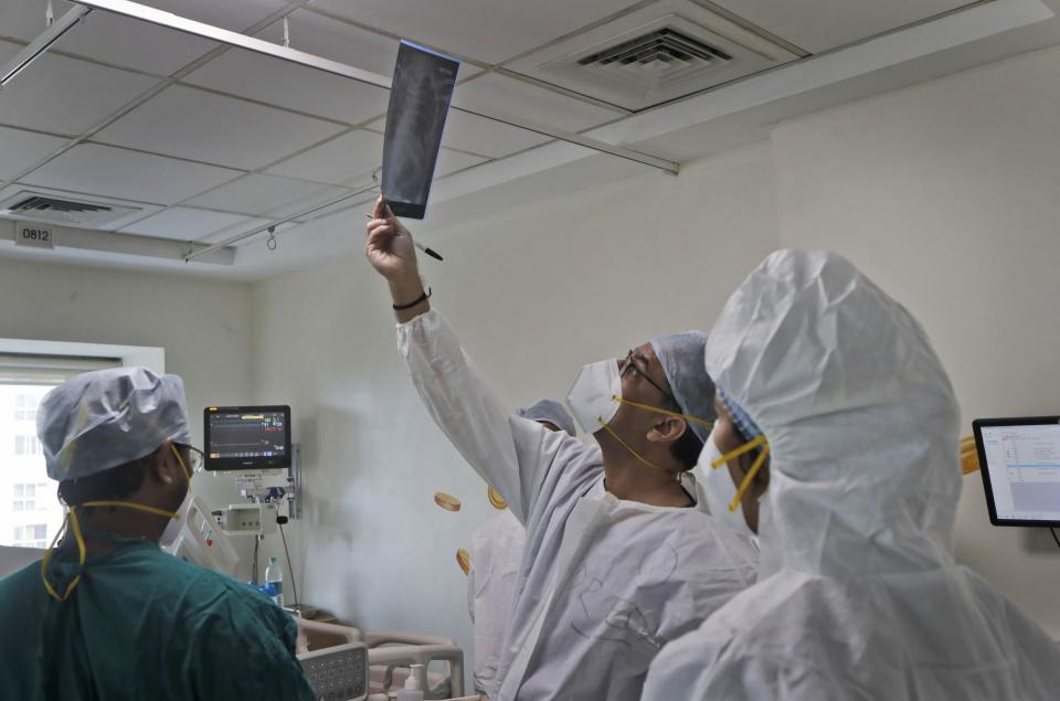 Dr. Kedar Toraskar, center, head of critical care, checks the X-ray of a COVID-19 patient in the ICU ward where he oversees at the Mumbai Central Wockhardt Hospital in Mumbai, India, June 5, 2021. The recent coronavirus surge in India affected young people on a scale his team of critical care doctors hadn't previously seen. Toraskar and his team of ICU doctors are still drained from the incredibly challenging last few months. (AP Photo/Rajanish Kakade)
