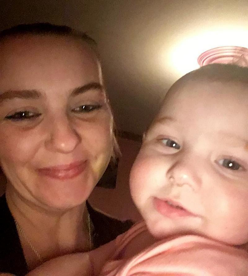 Leanne Bullard, with daughter Alice who was left covered in an horrific red rash over her body which ' looked like burn marks' after accidentally squirting tomato ketchup on herself. (SWNS)