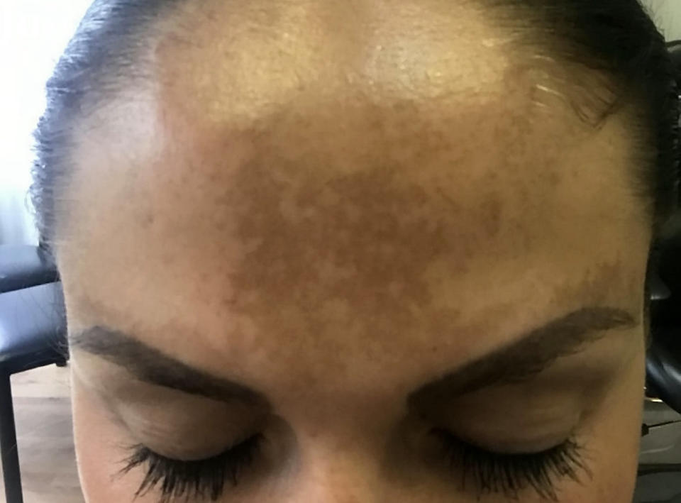 Harriet tried everything to reduce the pigmentation on her skin caused by sun damage [Photo: SWNS]