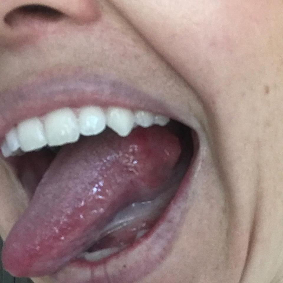 Pictured is the lump on Jamie Powell's tongue.
