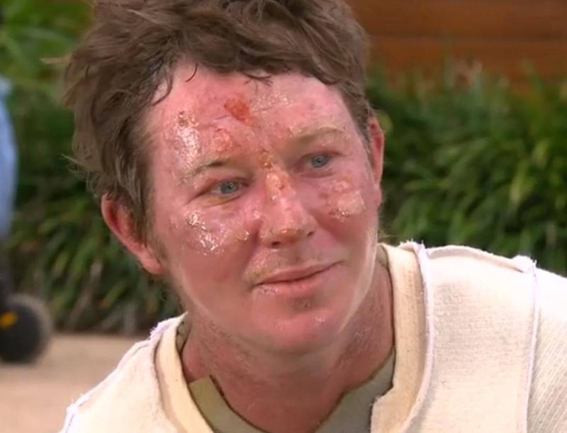 Nathan Perry suffered burns to his face, arms and legs during the fire: Nine News