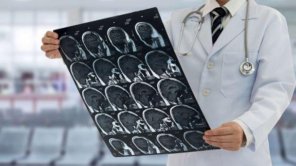 PHOTO: A doctor reviews brain scans in this stock photo. (Create Jobs 51/Shutterstock / create jobs 51)