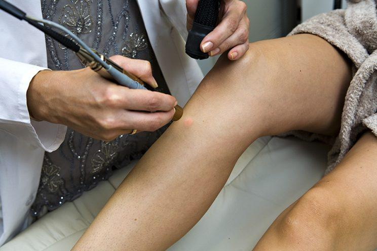 A new procedure to remove birthmarks and tattoos combines ultrasound with laser light