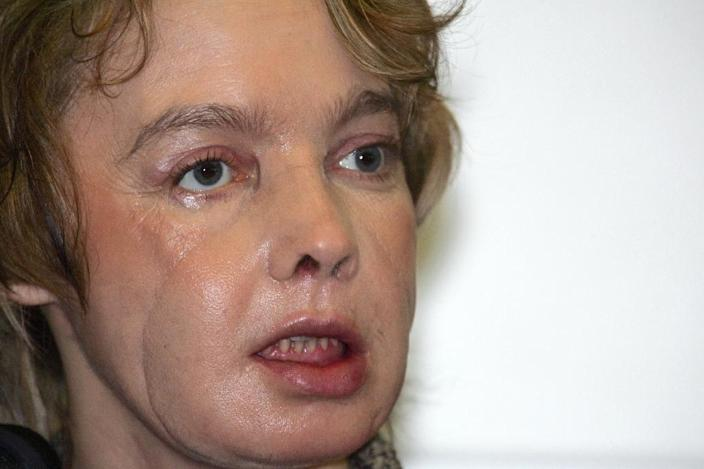 Frenchwoman Isabelle Dinoire received the world's first face transplant in 2005 (AFP Photo/Denis Charlet)