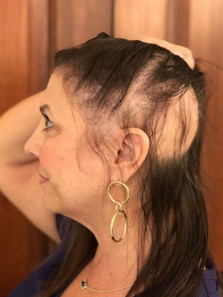 PHOTO: Cindy Dwyer lost a patch of her hair to brain cancer radiation but you can hardly tell now with her hair topper. (Cindy Dwyer)