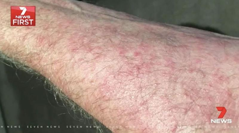Mr Howgate is hoping the new gel will help stop the itch. Source: 7 News