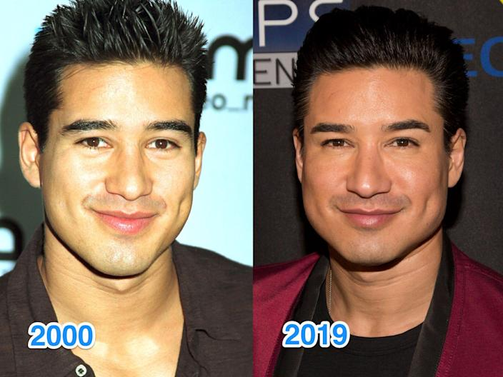 mario lopex then and now