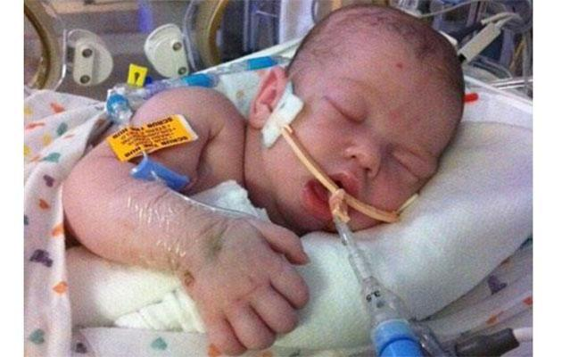 Landon was put on full life support.