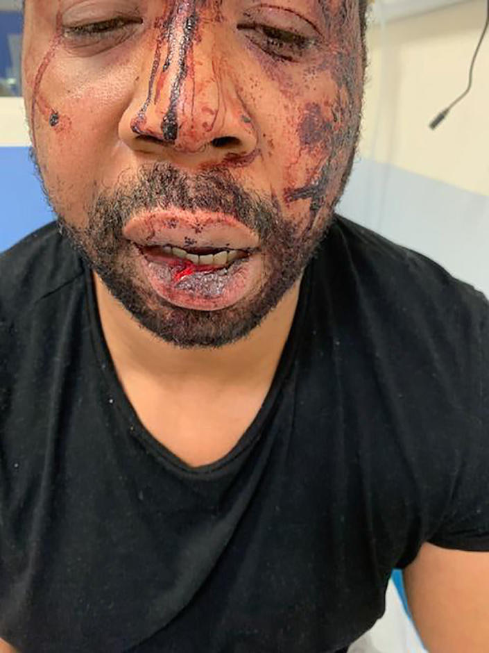 In this photo provided by Mazava music production shows Michel, no family name given, Saturday Nov.21, 2020 in Paris . French Interior Minister Gerald Darmanin ordered several Paris police officers suspended after the publication of videos showing them beating up a Black man and using tear gas against him with no apparent reason. (Mazava music production Via AP)