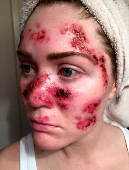 Womans Graphic Skin Cancer Selfie Highlights Dangers Of Repeated Tanning