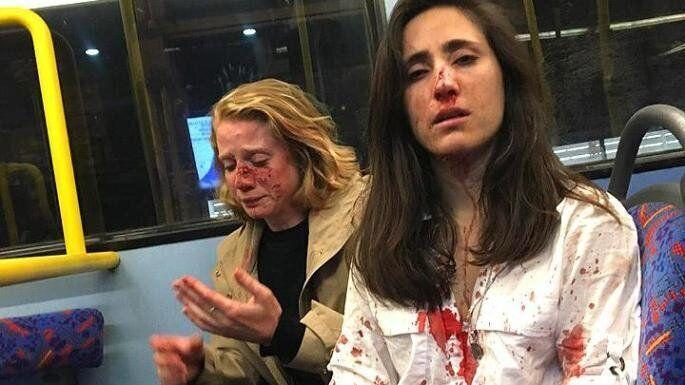 Melania Geymonat, 28, a Ryanair stewardess, right, and her girlfriend Chris, 29, were assaulted by a gang and left covered in blood after they refused to kiss. (Facebook)