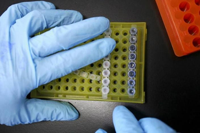 New research on HIV patients who can control the virus naturally may offer clues in the search for a cure