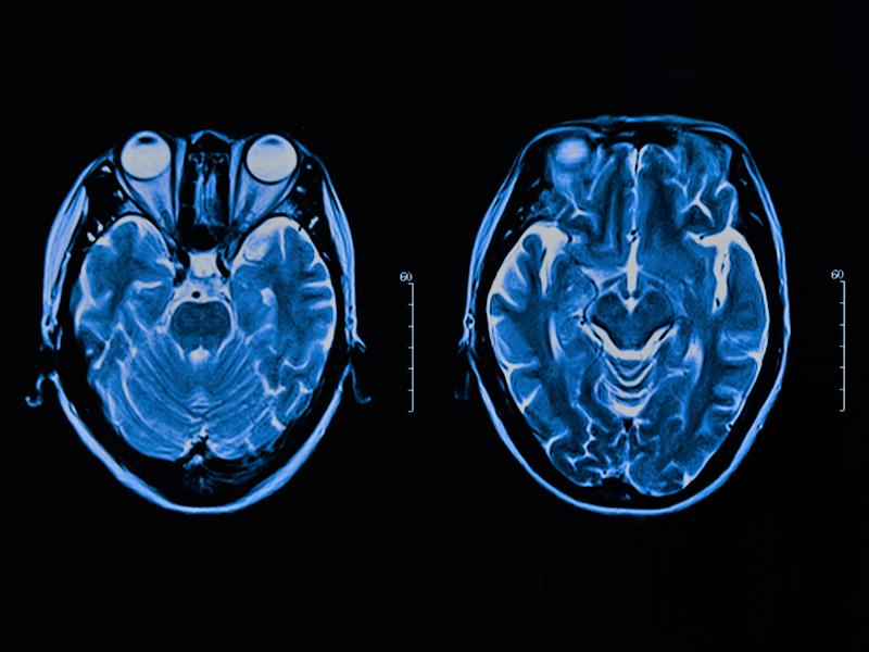 AI researchers at DeepMind discovered new details about how the human brain works: Getty Images/iStockphoto