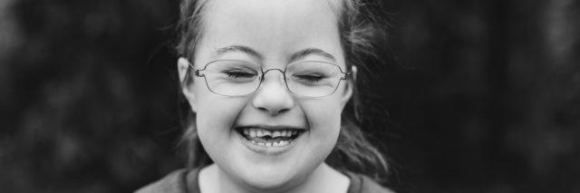 Black and white image of girl with Down syndrome smiling