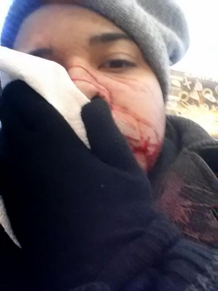 In this Jan 22, 2014 photo provided by Barry Negron, Negron holds a tissue to his face after being struck by ice falling off a four story building in New York. He required 8o stitches after getting hit in the face with a sharp, football-size chunk of ice while trying to warn other pedestrians about the potential of falling ice. City dwellers battling one of the most brutal winters on record have been dealing with something far more dangerous than snow falling from the sky: ice tumbling from skyscrapers. (AP Photo/Barry Negron)