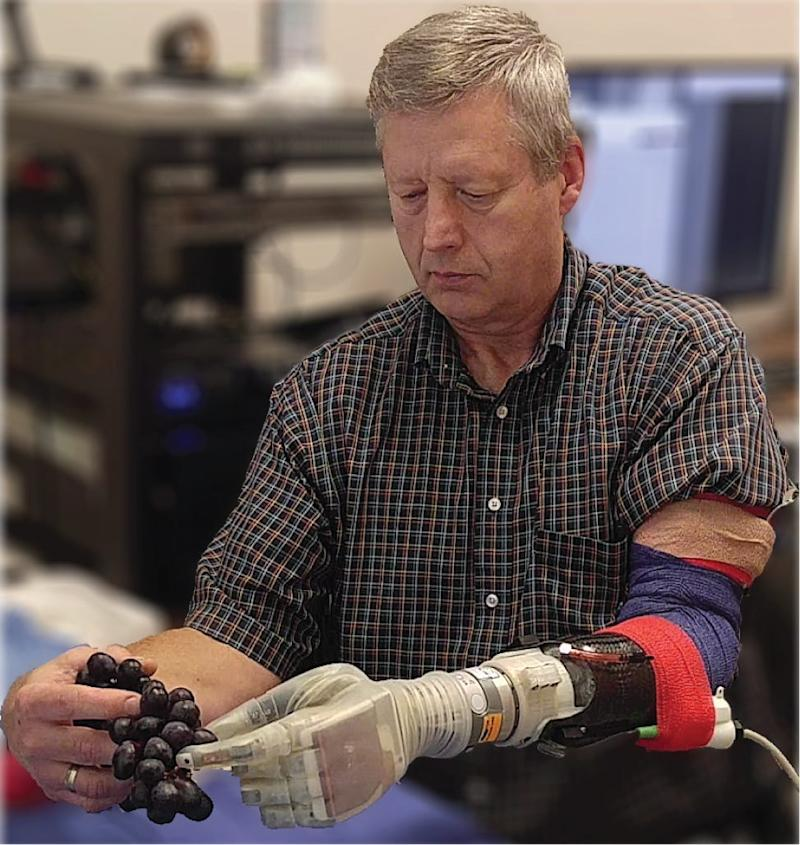 A bionic hand named after Luke Skywalker could help amputees feel again