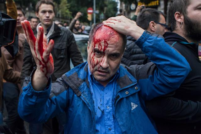 Clashes between voters and the police injured hundreds on Sunday.