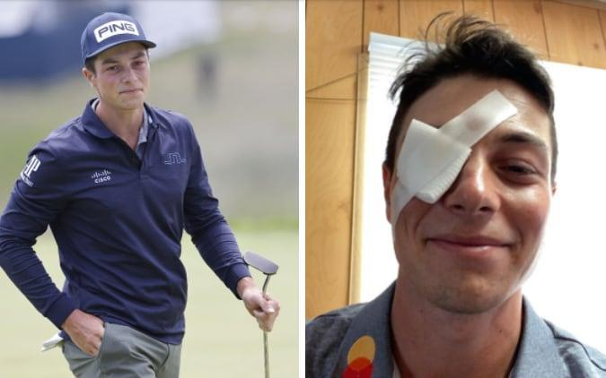 Viktor Hovland (right) with a bandage taped over his eye - EPA/INSTAGRAM