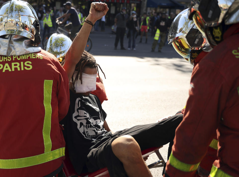 An injured man raises his fist as he is carried away by emergency personnel during a yellow vest demonstration in Paris, Saturday, April 20, 2019. French yellow vest protesters are marching anew to remind the government that rebuilding the fire-ravaged Notre Dame Cathedral isn't the only problem the nation needs to solve. (AP Photo/Francisco Seco)