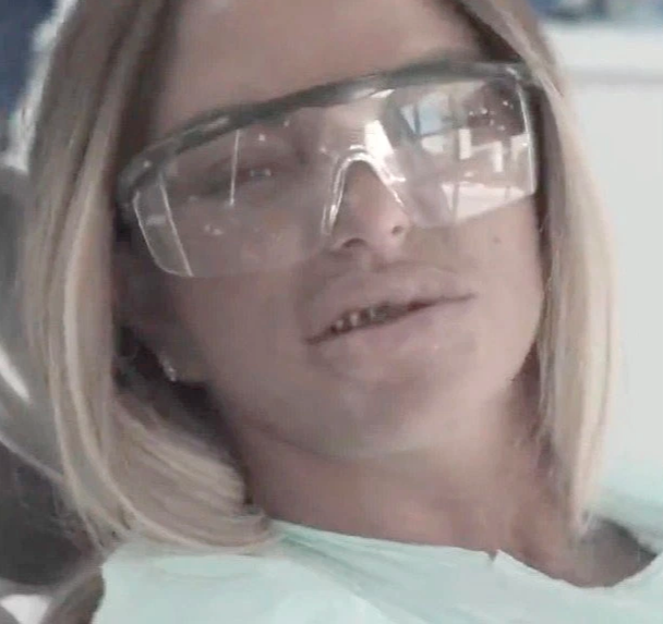 Katie Price in the dentist's chair without veneers