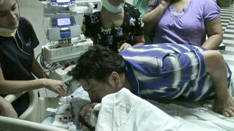In this image taken from a video released by Luis Calvo Mackenna hospital, Roberto Paredes, right, kisses his daughter Maria Jose, one of two conjoined twins after she was separated from her sister Maria Paz at the Luis Calvo Mackenna hospital in Santiago, Chile, Wednesday, Dec. 14, 2011. The 10-months-old  twins were joined at the chest, stomach and pelvis. (AP Photo/Luis Calvo Mackenna Hospital)