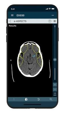 The new e-Stroke Suite 10.0 enables LVO detection from non-contrast CT scans.