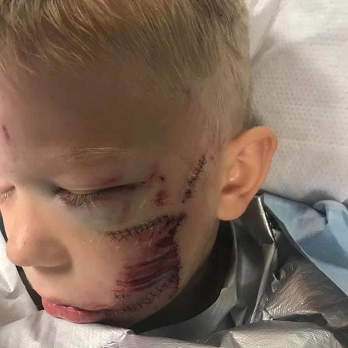 Bridger Walker after receiving stitches. (Courtesy Walker family)