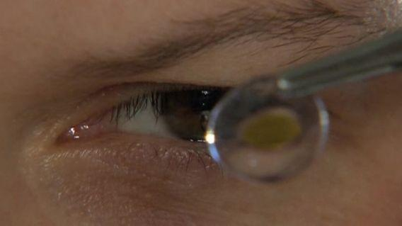 Contact lens wearers warned about new infection (Reuters)