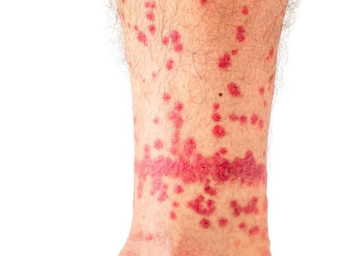 Flea bites are often grouped together on the legs, ankles, or feet.
