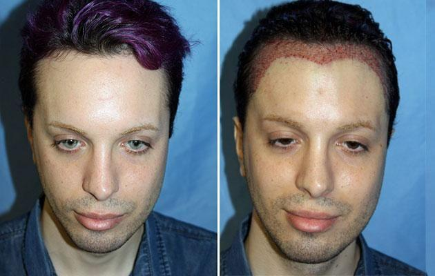 Luis' latest procedure gave him a dracula hairline. Photo: Caters news