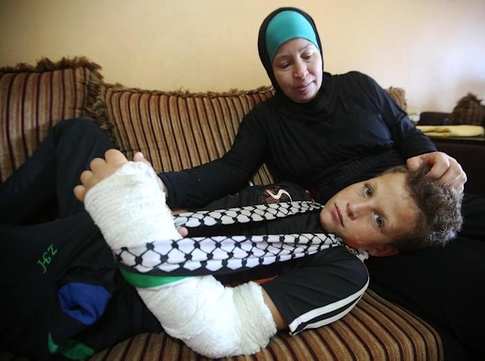 Mohammed Tamimi, 11 years old, rests his head on his mother's lap at their home in the West Bank village of Nabi Saleh near Ramallah, on August 29, 2015 (AFP Photo/Abbas Momani)