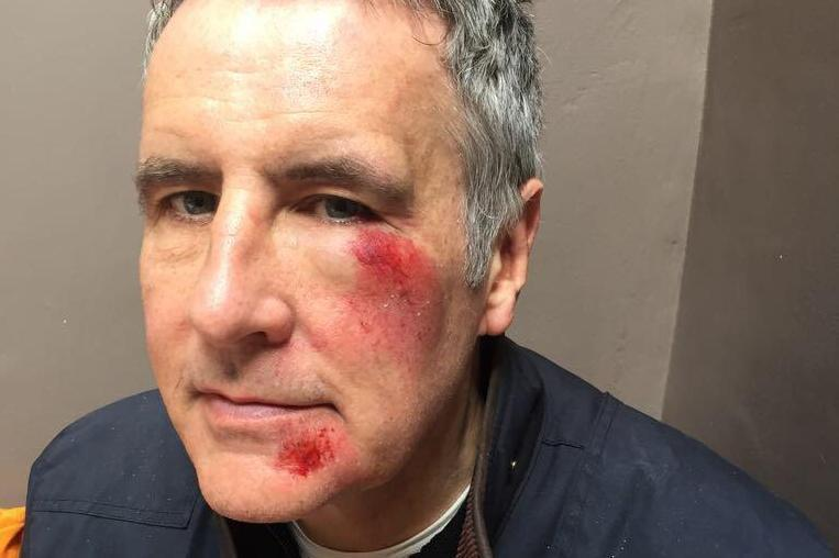 Battered and bruised: The Sky presenter said he was involved in a hit-and-run: @DermotMurnaghan