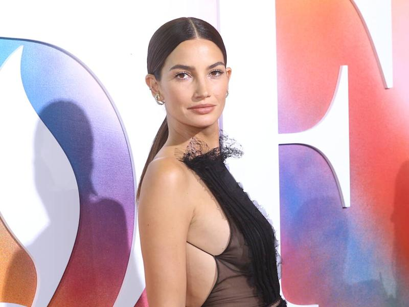 Lily Aldridge was once cut from photoshoot for having 'bad' skin