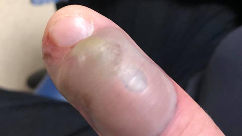 The man's finger is seen before treatment.