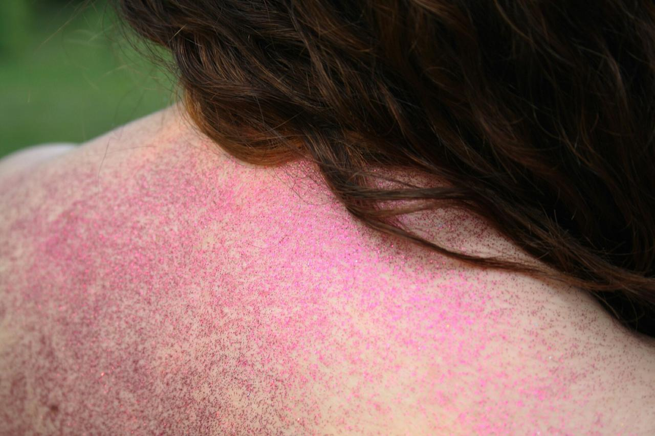 """<p><strong>Think you've got them? </strong>When you see blood vessels, bumps, enlarged oil glands, and thick skin on the nose, cheeks, and chin, all signs point to rosacea, a condition that affects more than 16 million Americans. People with rosacea flush easily, thanks to facial blood vessels that become dilated, drawing blood closer to the surface, says Leslie Baumann, MD, a dermatologist in Miami and author of <em>The Skin Type Solution</em>.</p> <p><strong>What to do: </strong>Seek out soothing soap-free ingredients that also act as anti-inflammatories, such as licorice, algae, and colloidal oatmeal. Forgo rough facials, steer clear of spa treatments like chemical peels and microdermabrasion, and avoid acidic skin-care ingredients, including glycolic acid and, surprisingly, vitamin C. Tweaking your diet may help, too. While spicy foods can exacerbate redness, """"eating foods rich in probiotics—such as yogurt with live cultures—can prevent skin sensitivity, redness, and itching by blocking the release of inflammation-causing chemicals,"""" says Whitney Bowe, MD, a dermatologist in New York City.</p>"""