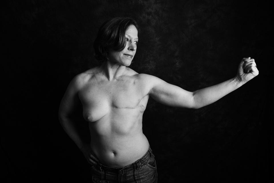 Thomasina McGuigan, 45, from Portsmouth, was diagnosed with stage 3 invasive breast cancer at the age of 20. <em>[Photo: Ami Barwell/PA Wire]</em>
