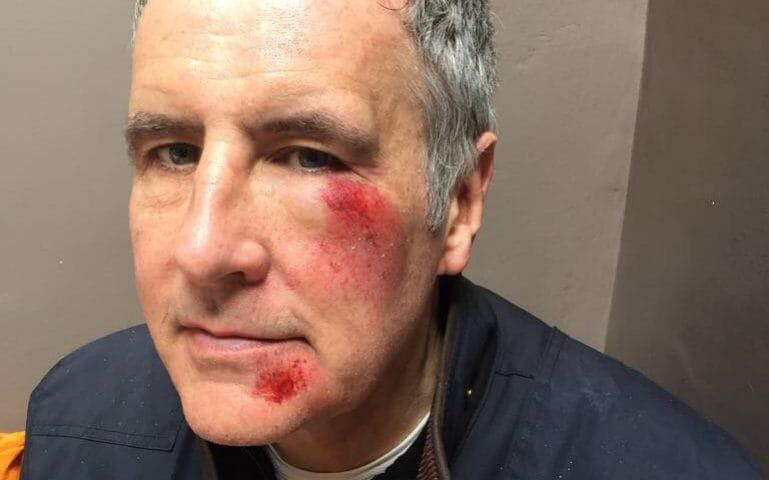 Dermot Murnaghan has shared a picture of his injuries after being involved in a hit-and-run attack -  @DermotMurnaghan