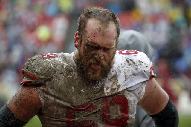 San Francisco guard Mike Person was a mess during the 49ers' 9-0 victory against Washington. (AP)