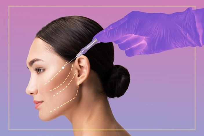 Are-Thread-Lifts-a-Lower-Stakes-Face-Lift-Alternative