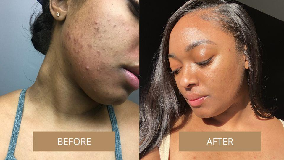 """It's made with jojoba oil (which helps retain moisture), vitamin E (which repairs skin), tea tree oil (an anti-inflammatory ingredient that helps soothe redness) and Argan oil (which evens skin tone).<br /><br /><a href=""""https://go.skimresources.com?id=38395X987171&xs=1&url=https%3A%2F%2Faxvbeauty.com%2F&xcust=HPBasicBeauty607dad6fe4b0bc5a3a5a7609"""" target=""""_blank"""" rel=""""noopener noreferrer"""">AxV Beauty</a> is a Black-owned skin care and wellness business started by Asata Evans and Vic Rose.<br /><br /><strong>Get it from AxV Beauty for<a href=""""https://go.skimresources.com?id=38395X987171&xs=1&url=https%3A%2F%2Faxvbeauty.com%2Fproducts%2Fessential-face-oil&xcust=HPBasicBeauty607dad6fe4b0bc5a3a5a7609"""" target=""""_blank"""" rel=""""nofollow noopener noreferrer"""" data-skimlinks-tracking=""""5909265