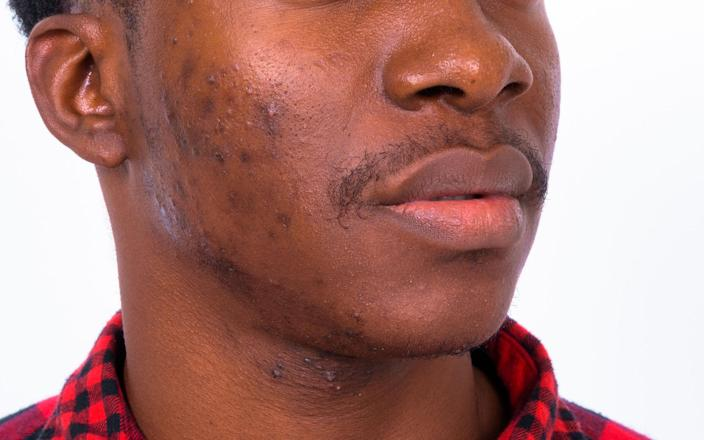 """Acne is fairly universal in terms of how it looks, but there is more post-inflammatory hyperpigmentation (PIH) in darker skin, said McMichael. """"The acne lesion may take 1 to 2 weeks to improve, but the PIH can last for many weeks to months."""" (Getty Images)"""