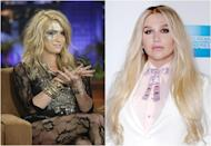 <p>Ke$ha replaced the face glitter and grunge locks with toned down foundation and perfectly coiffed hair—what a stunner! <i> (Photos: Getty) </i> </p>