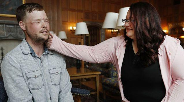 A widow has had an emotional meeting with the man who was given her late husband's face. Photo: Associated Press