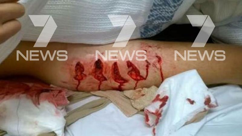 Cooper Allen was left with bloodied chunks of flesh missing from his leg. Photo: 7 News