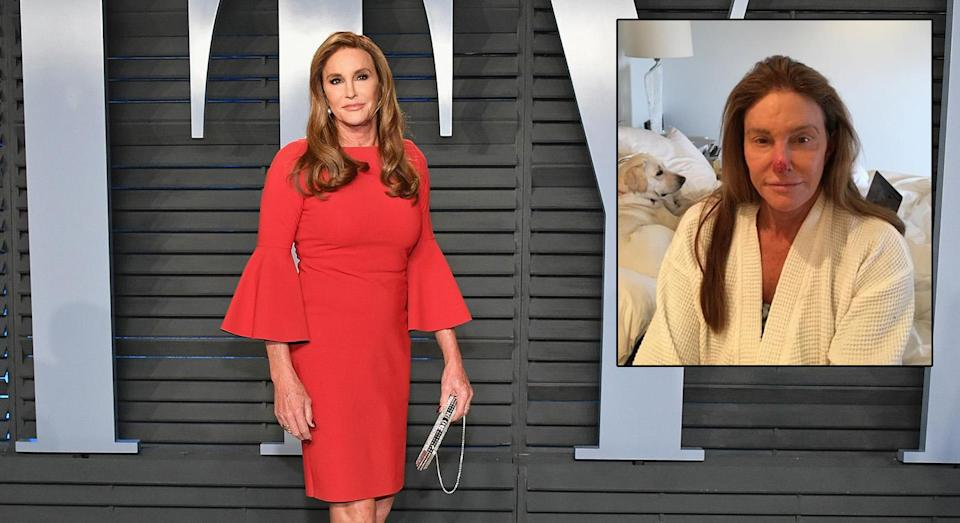 Caitlyn Jenner took to Instagram to stress the important of correct skincare in the sun. [Photo: Getty/Instagram @Caitlyn Jenner]