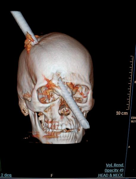 This tomography scan released Thursday, Aug. 16, 2012 by the Miguel Couto hospital, shows the skull of 24-year-old construction worker Eduardo Leite pierced by a metal bar in Rio de Janeiro, Brazil. Doctors say Leite survived after a 6-foot metal bar fell from above him and pierced his head. Luiz Essinger of Rio de Janeiro's Miguel Couto Hospital Friday told the Globo TV network that doctor's successfully withdrew the iron bar during a five-hour-long surgery. (AP Photo/Miguel Couto Hospital)