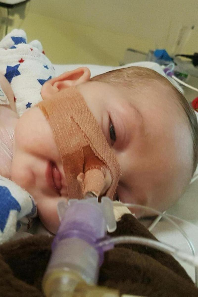 Charlie Gard suffers from a form of mitochondrial disease that causes progressive muscle weakness (PA)