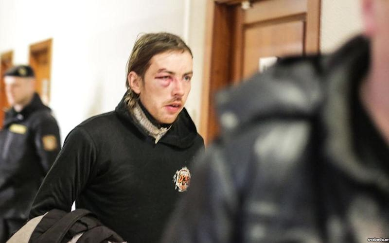 An injured protester  - svoboda.org