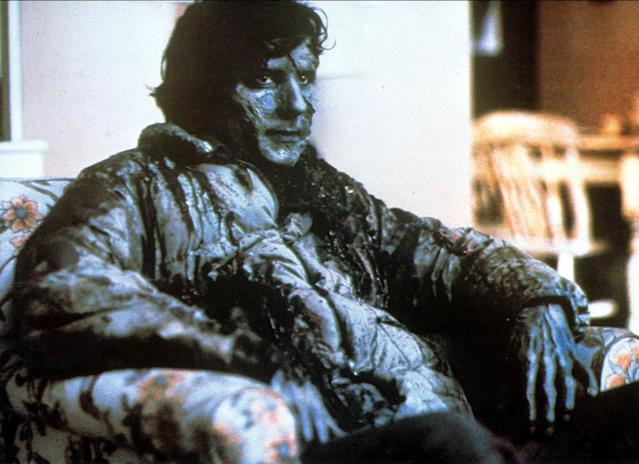 Griffin Dunne in <i>An American Werewolf in London</i>. (Photo: Mary Evans/Ronald Grant/Everett Collection)