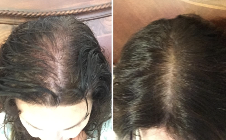 """I've been using this product for nearly a month. This picture represents Hair growth in the last month,"" writes this reviewer. (Photo: Amazon)"